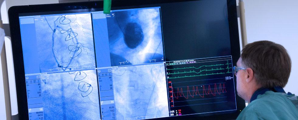 Herzkatheterlabor-livebildschirm